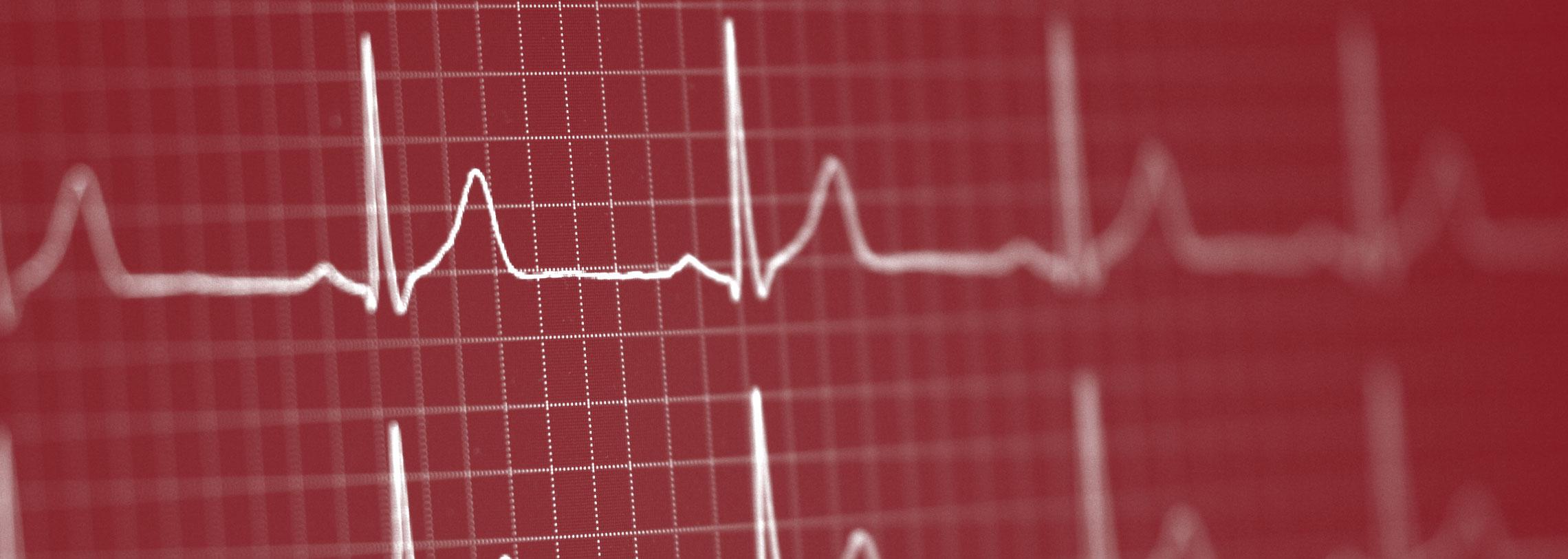 EKG- Kardiologe Berlin Schlachtensee